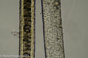 long structures under a microscope
